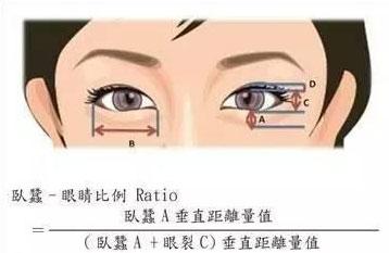 上海美莱玻尿酸可以打卧蚕吗