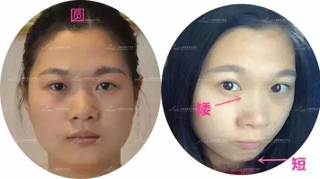 上海美莱玻尿酸填充,让你拥有少女脸