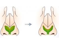 鼻孔缩小自然方法有哪些