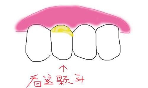 牙周病是什么原因导致的,怎么治疗