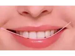 烤瓷牙修复牙齿谁做过,效果怎么样