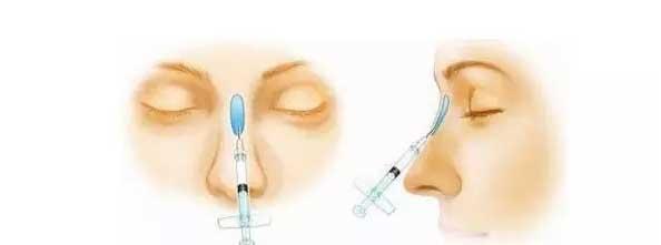注射隆鼻选择自体脂肪还是玻尿酸