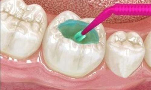 为什么补牙还要分好几次才能完成