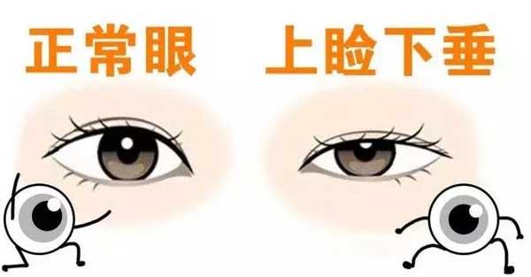 什么原因导致眼皮松弛下垂