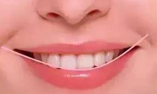 上海美莱魏东介绍牙齿不齐有哪些危害!