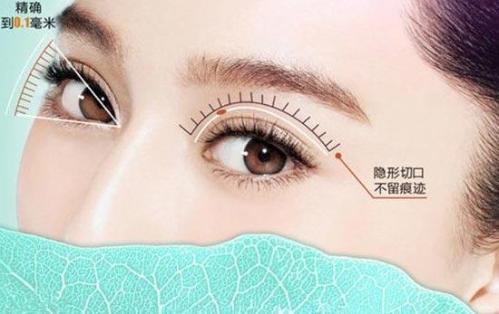 上海韩式双眼皮价格一般为多少