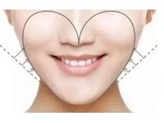 上海美莱面部吸脂恢复过程图