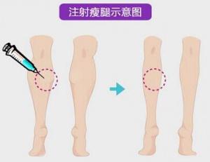 瘦腿针一般多久见效