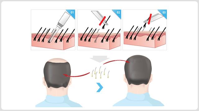 上海毛发种植手术多少钱