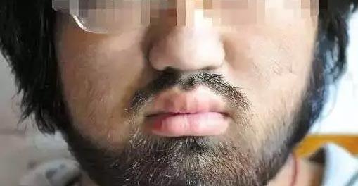 男士脱络腮胡要多久脱一次