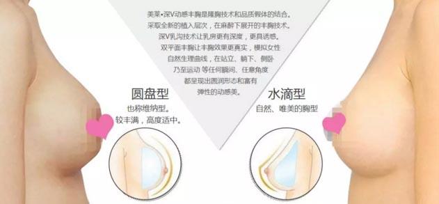 上海美莱医院隆胸效果怎么样