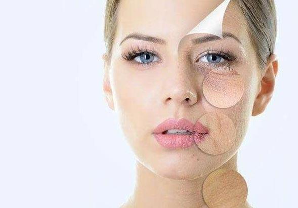 美莱果酸焕肤是什么