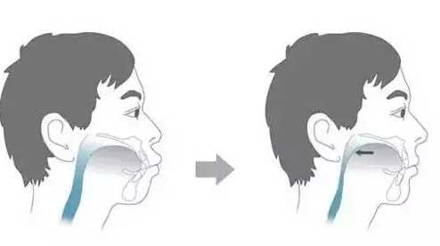 矫正牙齿拔牙可以改变前突吗