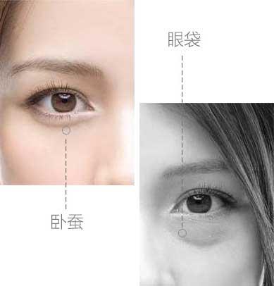 上海那家去眼袋手术好,美莱怎么样