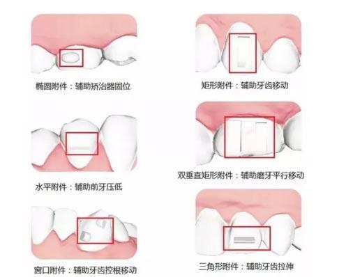 是所有隐形矫正都需要粘附件加牙切片吗