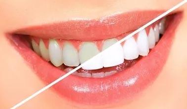 美莱医疗牙齿美白价格大概是多少钱