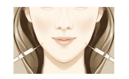 美莱瘦脸针需要多少钱