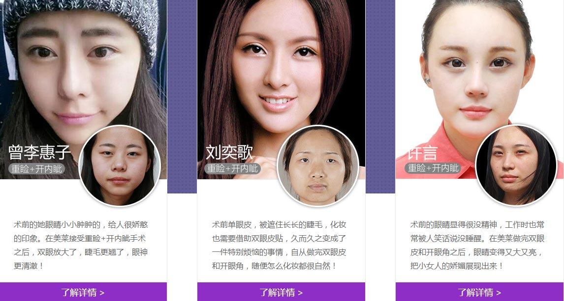 上海美莱开眼角前后对比照片图