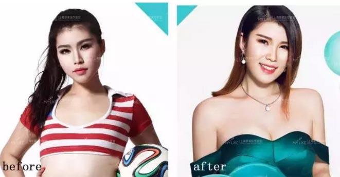 上海美莱自体脂肪丰胸案例