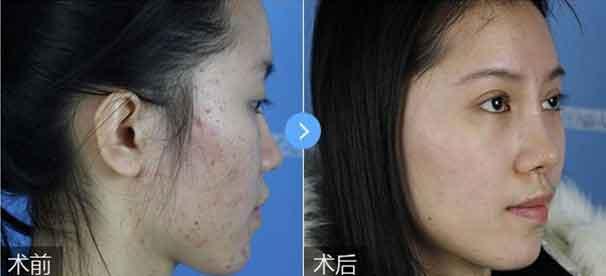 上海美莱祛痘案例