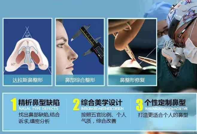 上海做鼻子修复牛的医生是谁
