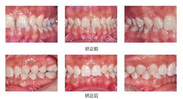 上海美莱做牙齿矫正是不是那么好