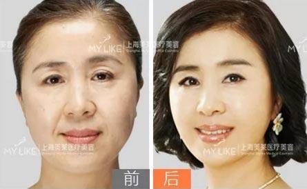 上海美莱逆龄提拉,给予您想不到的美