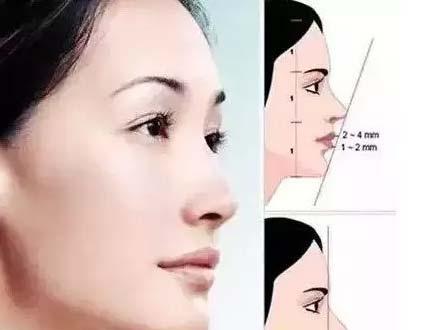 吸脂减掉双下巴的效果怎么样