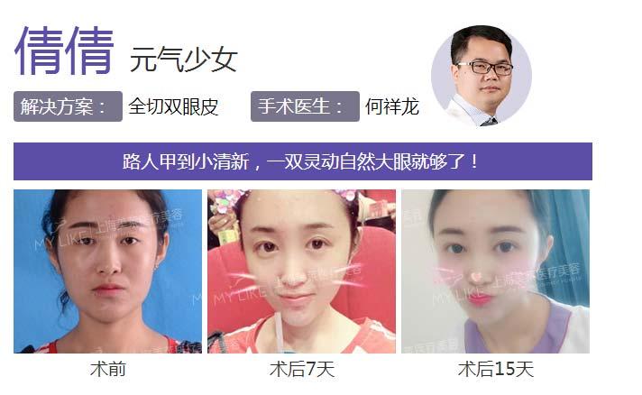 上海割双眼皮哪家医院出名