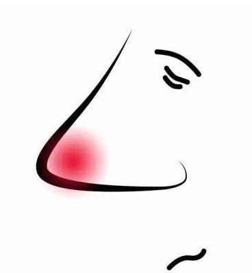 酒糟鼻形成的原因是什么为什么