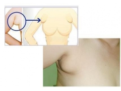上海一般做副乳手术要多少钱