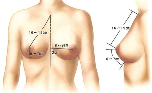 假体隆胸的注意事项我们需要注意哪些