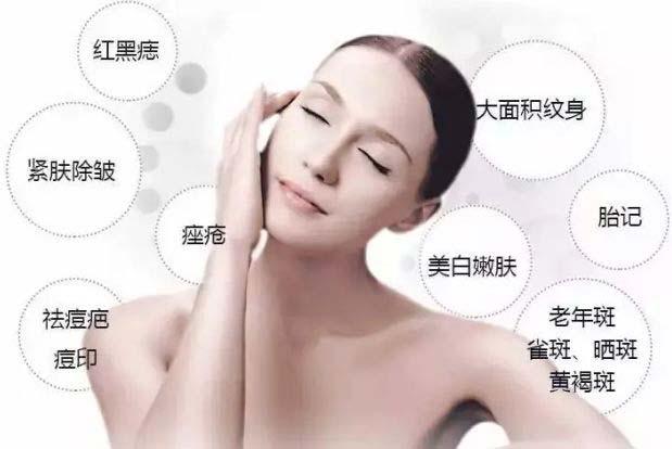 上海美莱Medlite C6激光祛斑让您永远下斑