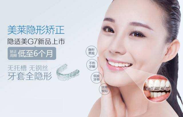 上海美莱无托槽无钢丝全隐形牙套矫正时间缩短