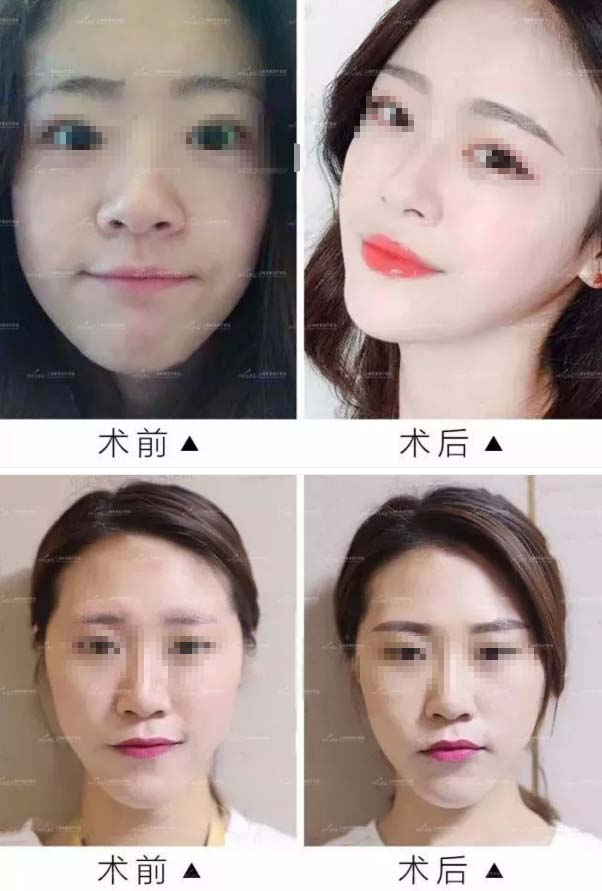 上海美莱半永久纹眉真实案例