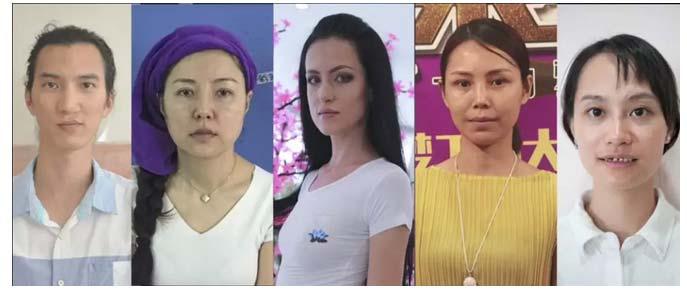 上海美莱 这5个故事或许会让你对整形放下偏见