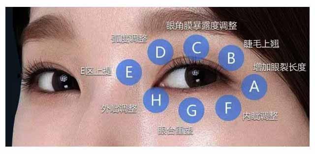 杜园园做眼睛怎么样