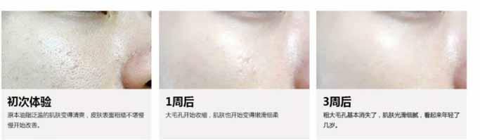 上海美莱果酸焕肤|我们是新皮肤搬运工