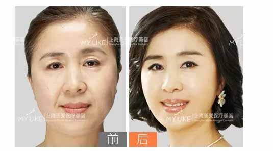 惊喜钜惠中|上海美莱线雕提拉让青春定格