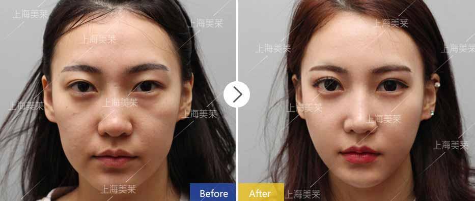上海美莱整容鼻子多少费用