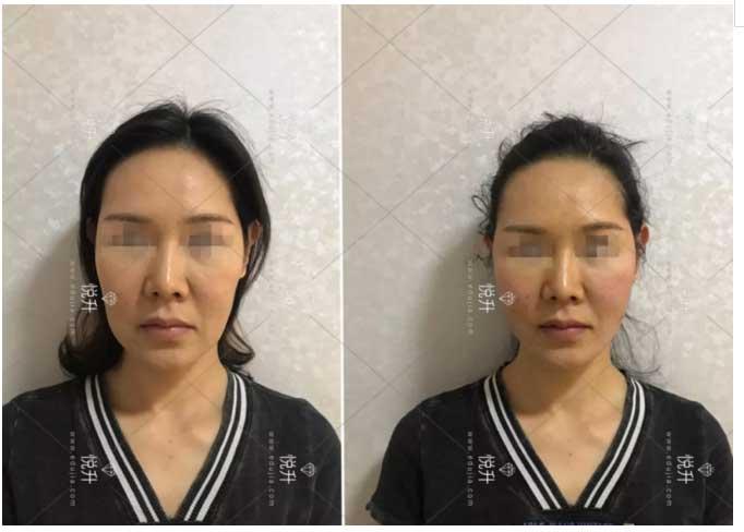 上海美莱悦升线提升面部轮廓
