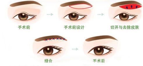 上海做眼皮下垂手术多少钱