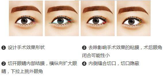 上海内眼角修复哪家医院好