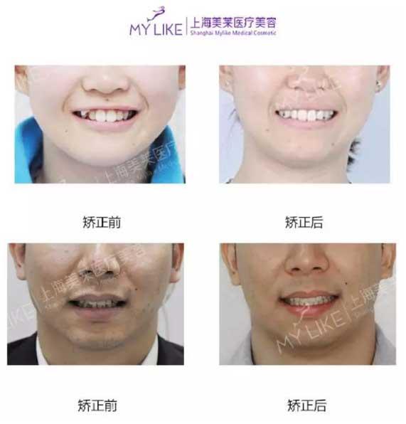 上海美莱口腔科周茹做牙齿怎么样
