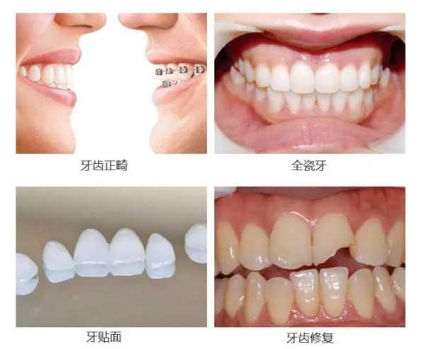 上海美莱口腔科周茹牙齿案例