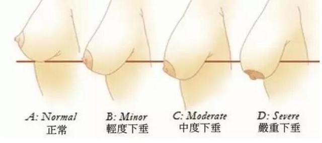 产后胸部下垂怎样恢复
