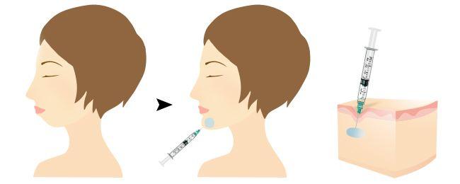 上海美莱玻尿酸丰下巴多久可以定型