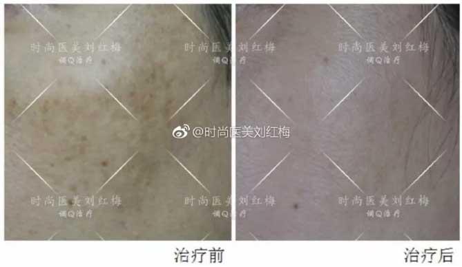 上海美莱皮肤专家刘红梅祛斑案例
