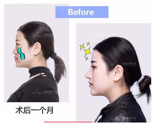 上海美莱卢建-隆鼻案例分享-让美丽更持久