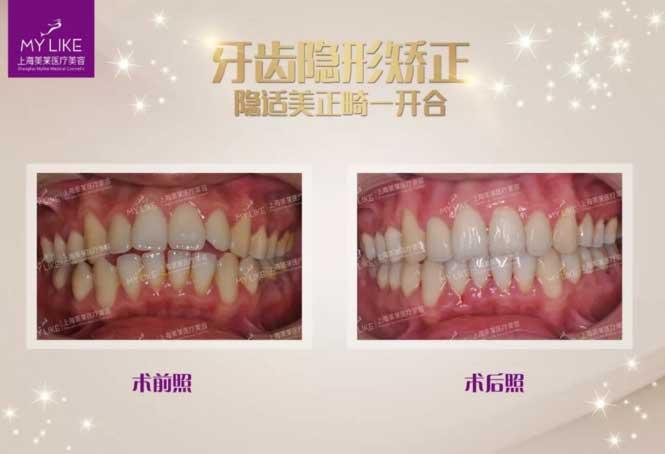 上海美莱魏东隐适美牙齿矫正案例